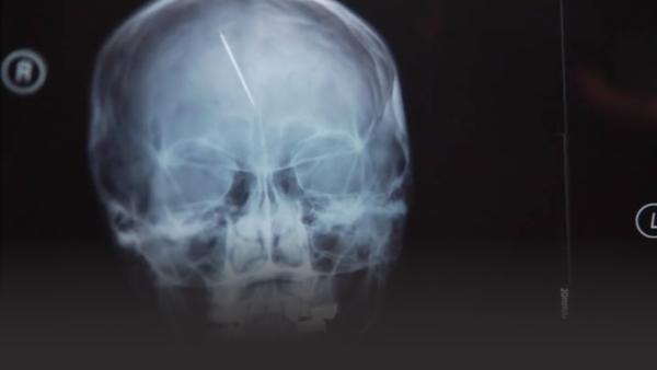 An x-ray of brain trauma caused by torture, needle insertion