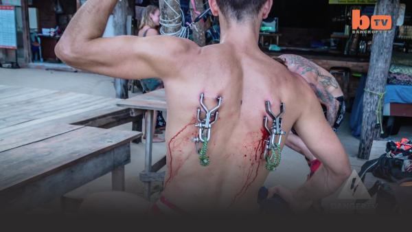 Man's back pierced by parachute harness